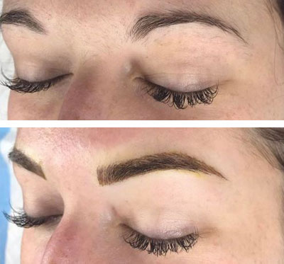 Amarillo Microblading Treatments